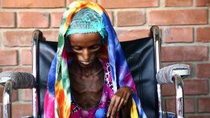 Гуманитарная катастрофа в Йемене